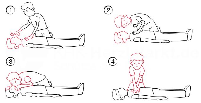 Rettende Herzdruckmassage beim Herzinfarkt