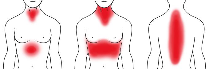 Typische Symptome bei Frauen beim Herzinfarkt