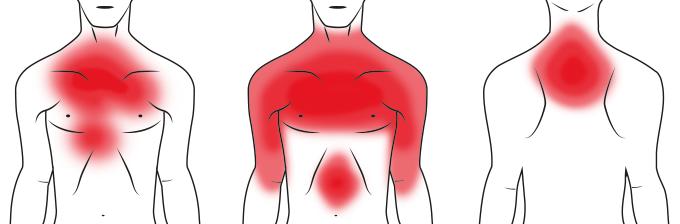 Typische Symptome bei einem Herzinfarkt